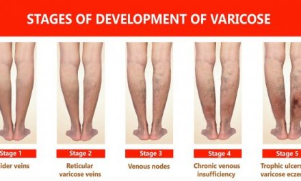 AURSES HEALTHCARE OFFERS INNOVATIVE METHODS TO TREAT VARICOSE VEINS